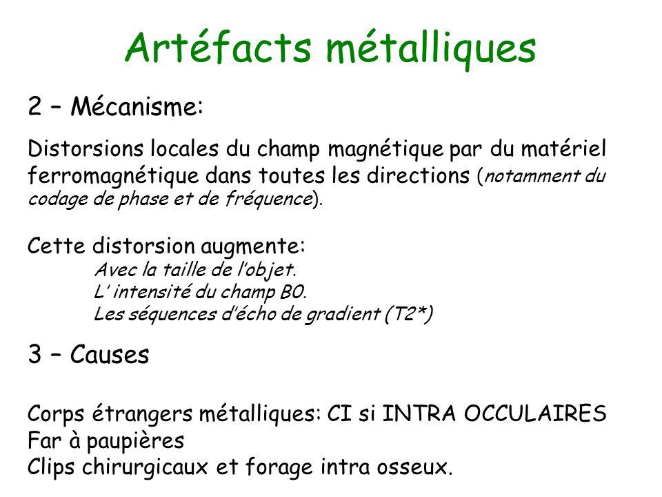 Artéfacts métalliques 2 – Mécanisme: Distorsions locales du champ magnétique par du matériel ferromagnétique dans toutes les directions (notamment du