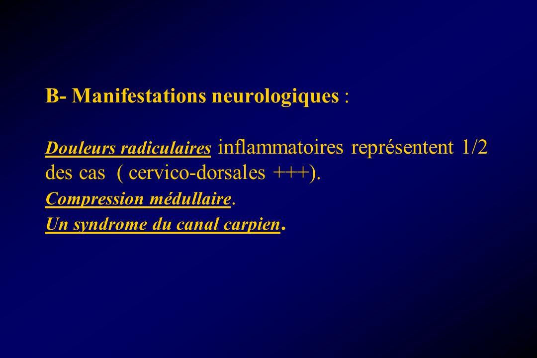 B- Manifestations neurologiques : Douleurs radiculaires inflammatoires représentent 1/2 des cas ( cervico-dorsales +++). Compression médullaire. Un sy