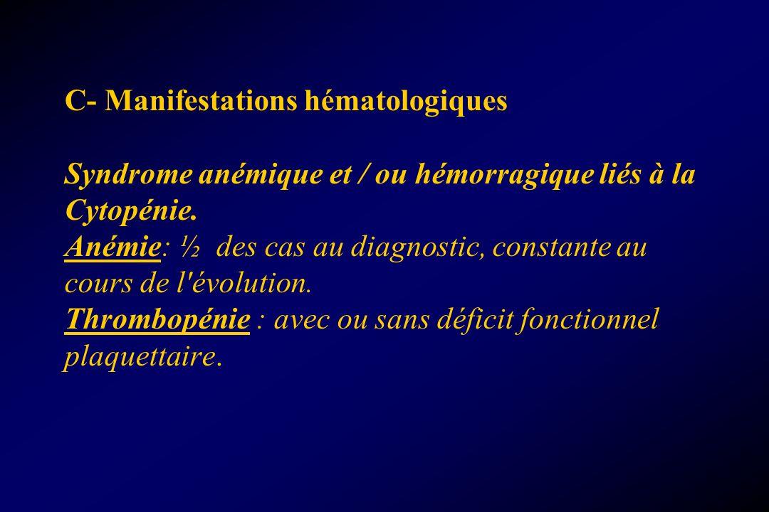 C- Manifestations hématologiques Syndrome anémique et / ou hémorragique liés à la Cytopénie. Anémie: ½ des cas au diagnostic, constante au cours de l'