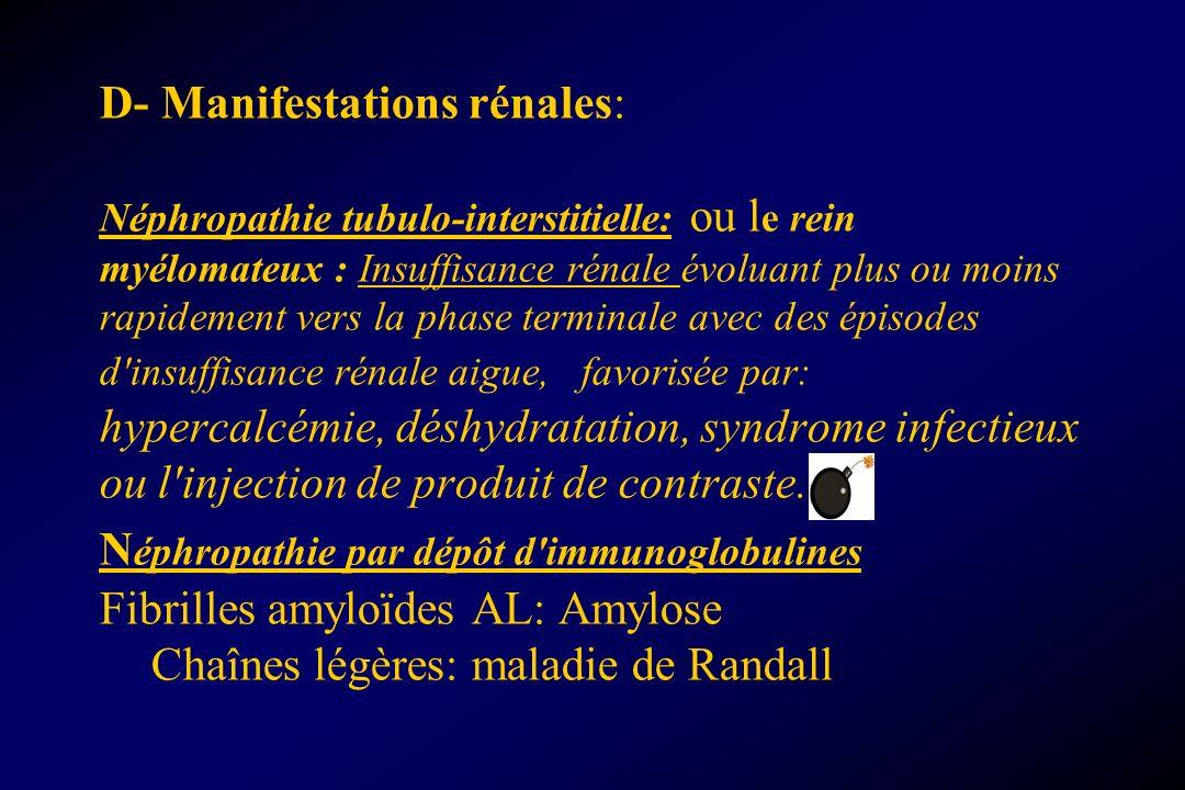 D- Manifestations rénales: Néphropathie tubulo-interstitielle: ou l e rein myélomateux : Insuffisance rénale évoluant plus ou moins rapidement vers la