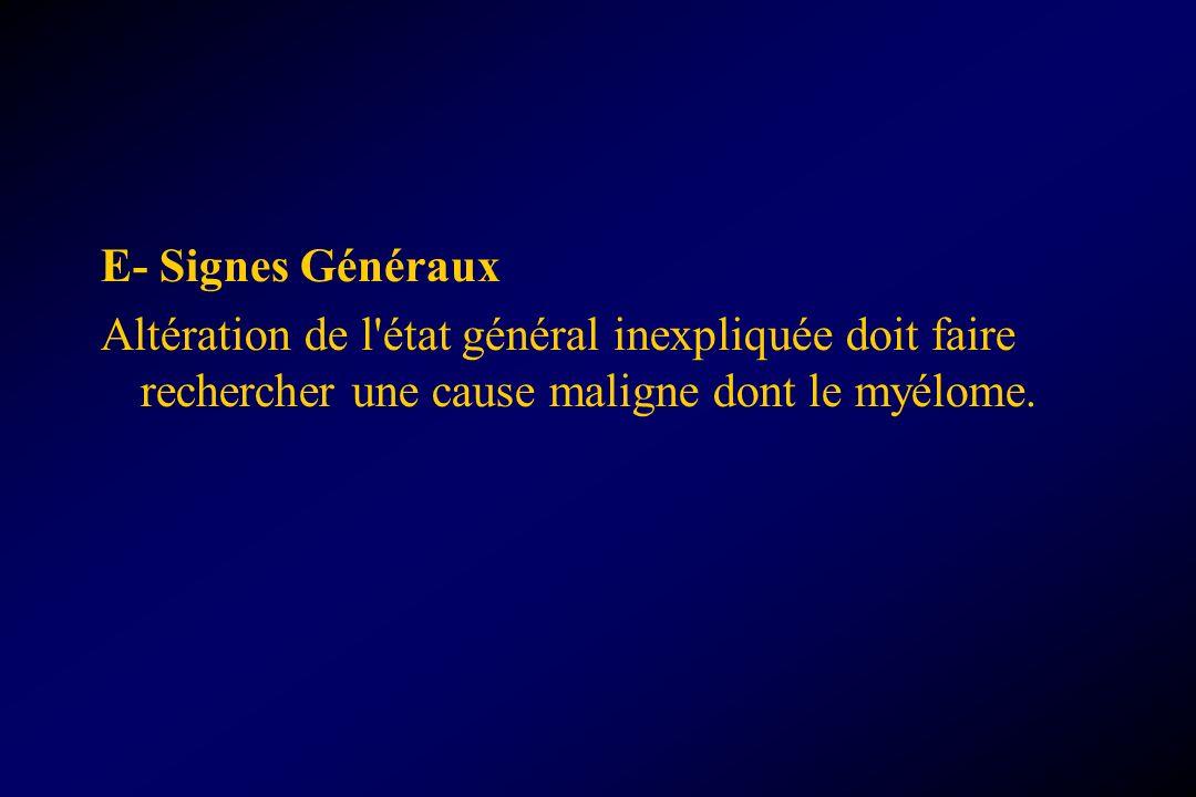 E- Signes Généraux Altération de l'état général inexpliquée doit faire rechercher une cause maligne dont le myélome.