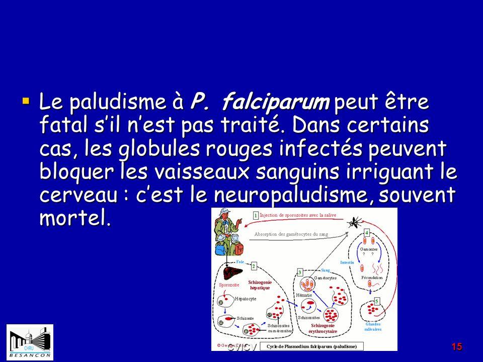 Le paludisme à P. falciparum peut être fatal sil nest pas traité. Dans certains cas, les globules rouges infectés peuvent bloquer les vaisseaux sangui