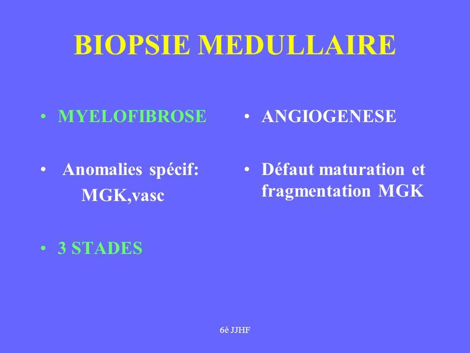 6é JJHF BIOPSIE MEDULLAIRE MYELOFIBROSE Anomalies spécif: MGK,vasc 3 STADES ANGIOGENESE Défaut maturation et fragmentation MGK
