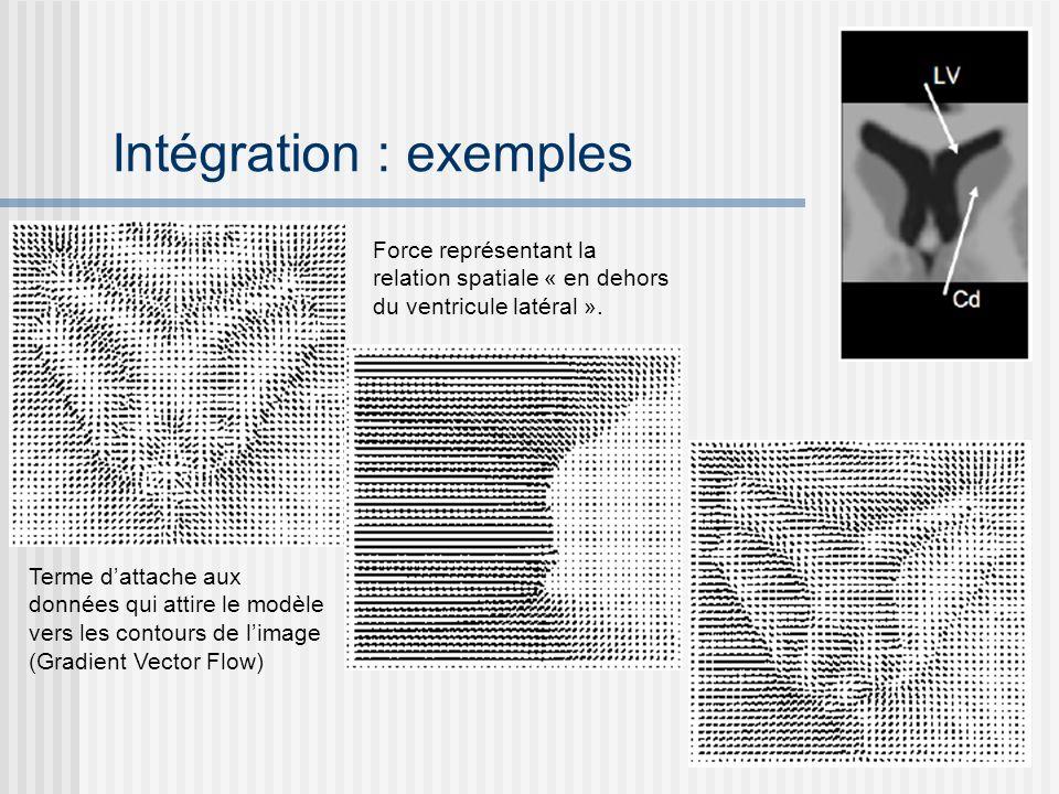 Intégration : exemples Terme dattache aux données qui attire le modèle vers les contours de limage (Gradient Vector Flow) Force représentant la relati
