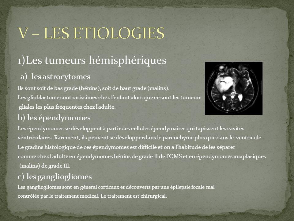 1)Les tumeurs hémisphériques a) les astrocytomes Ils sont soit de bas grade (bénins), soit de haut grade (malins). Les glioblastome sont rarissimes ch