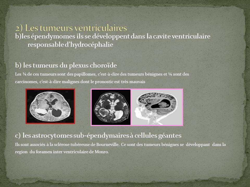 b)les épendymomes ils se développent dans la cavite ventriculaire responsable dhydrocéphalie b) les tumeurs du plexus choroïde Les ¾ de ces tumeurs so