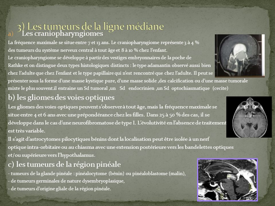 a) Les craniopharyngiomes La fréquence maximale se situe entre 7 et 13 ans. Le craniopharyngiome représente 3 à 4 % des tumeurs du système nerveux cen