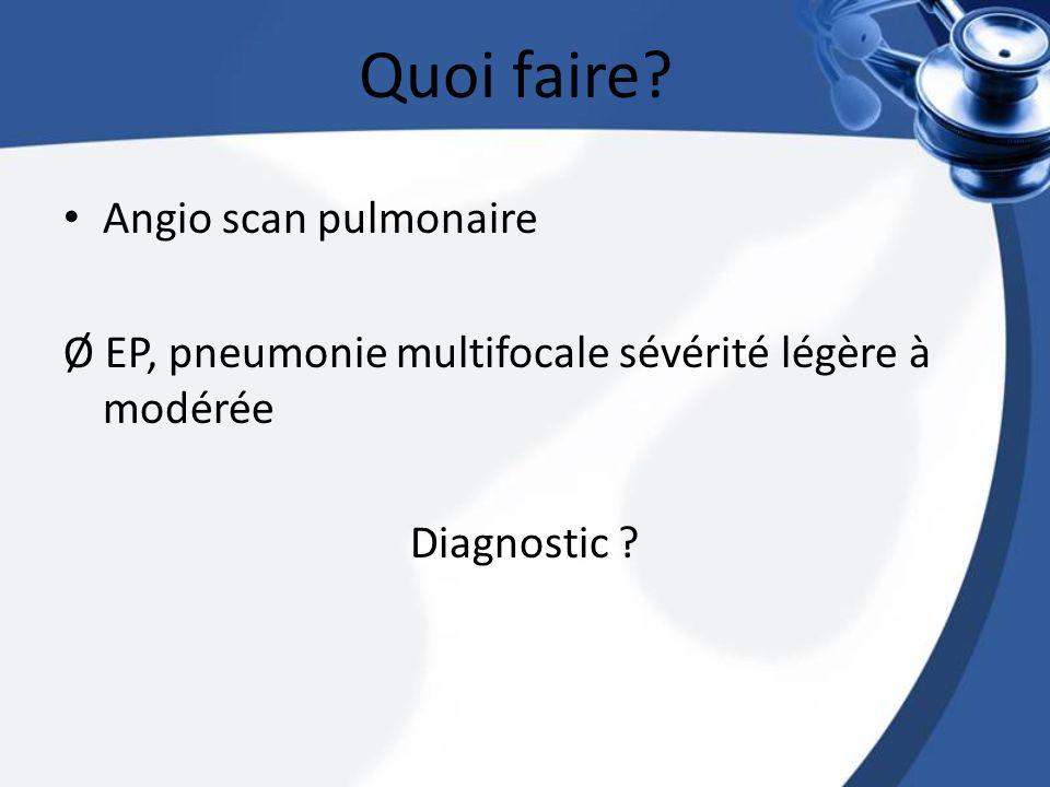 Angio scan pulmonaire Ø EP, pneumonie multifocale sévérité légère à modérée Diagnostic ? Quoi faire?