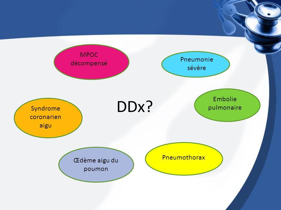 DDx? Pneumonie sévère MPOC décompensé Embolie pulmonaire Syndrome coronarien aigu Pneumothorax Œdème aigu du poumon