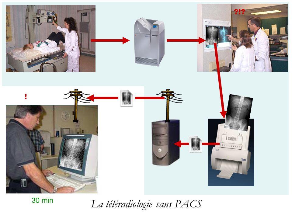 La (télé)radiologie moderne, avec un PACS RIS PACS ?!.