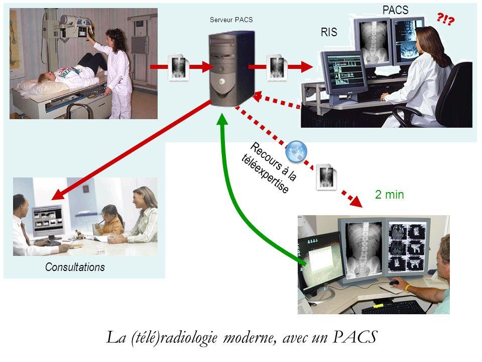 La (télé)radiologie moderne, avec un PACS RIS PACS ?!? 2 min Serveur PACS Consultations Recours à la téléexpertise