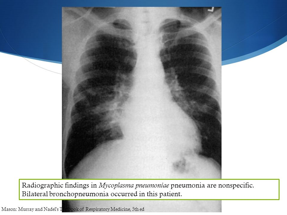 Radiographic findings in Mycoplasma pneumoniae pneumonia are nonspecific. Bilateral bronchopneumonia occurred in this patient. Mason: Murray and Nadel