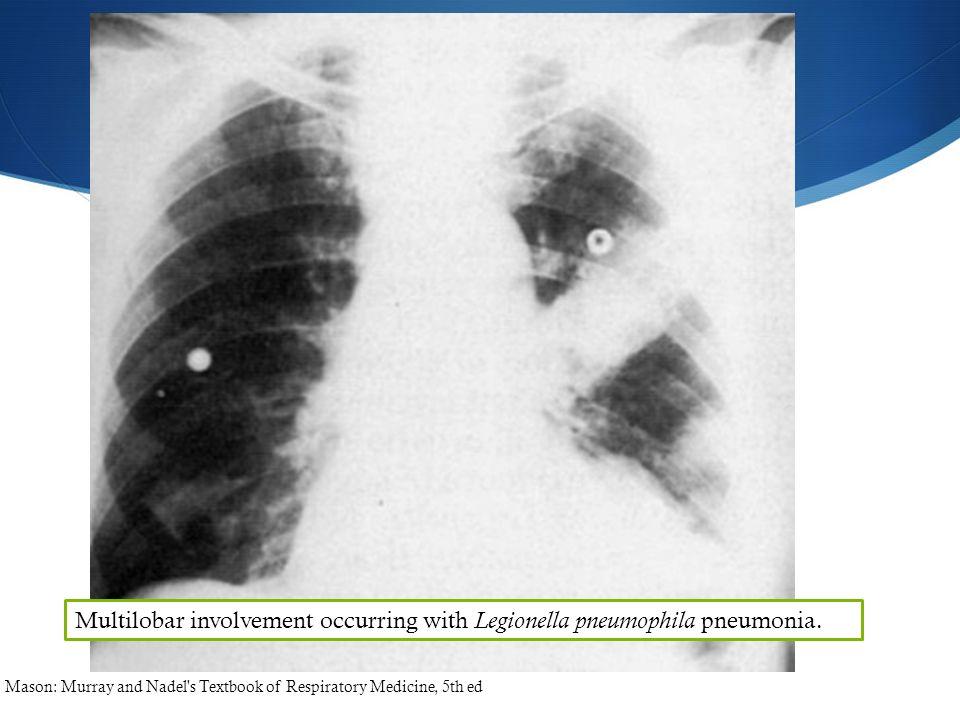 Multilobar involvement occurring with Legionella pneumophila pneumonia. Mason: Murray and Nadel's Textbook of Respiratory Medicine, 5th ed