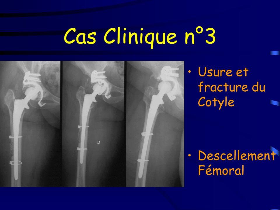 Cas Clinique n°3 Usure et fracture du Cotyle Descellement Fémoral