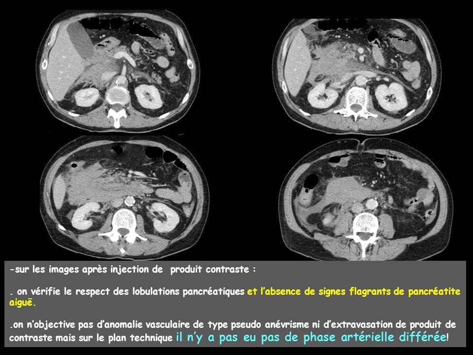 le patient est transféré on au CHU et un nouveau scanner est réalisé à J4, avec acquisition multiphasique, comportant un temps artériel différé (45 secondes après IV) ; on objective ainsi une petite image ayant un rehaussement de type artériel mais avec des contours moins nets que ceux des vaisseaux normaux de calibre analogue