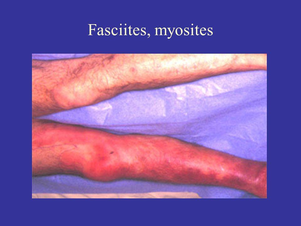 Fasciites, myosites