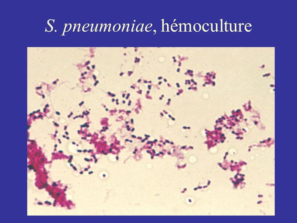 S. pneumoniae, hémoculture