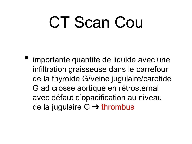 CT Scan Cou importante quantité de liquide avec une infiltration graisseuse dans le carrefour de la thyroide G/veine jugulaire/carotide G ad crosse ao