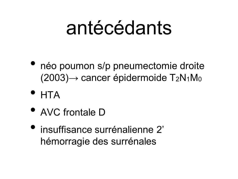 antécédants néo poumon s/p pneumectomie droite (2003) cancer épidermoide T 2 N 1 M 0 HTA AVC frontale D insuffisance surrénalienne 2 hémorragie des su