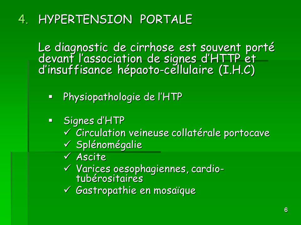 6 4.HYPERTENSION PORTALE Le diagnostic de cirrhose est souvent porté devant lassociation de signes dHTTP et dinsuffisance hépaoto-cellulaire (I.H.C) P