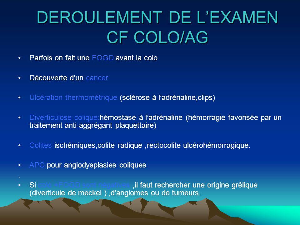 DEROULEMENT DE LEXAMEN CF COLO/AG Parfois on fait une FOGD avant la colo Découverte dun cancer Ulcération thermométrique (sclérose à ladrénaline,clips