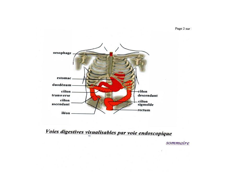 GESTES Biopsies (Maladie de crohn…) Polypectomies++:le polype peux être retiré soit à laide dune pince (coagulante ou non)qui permet darracher le polype sil est de petite taille.