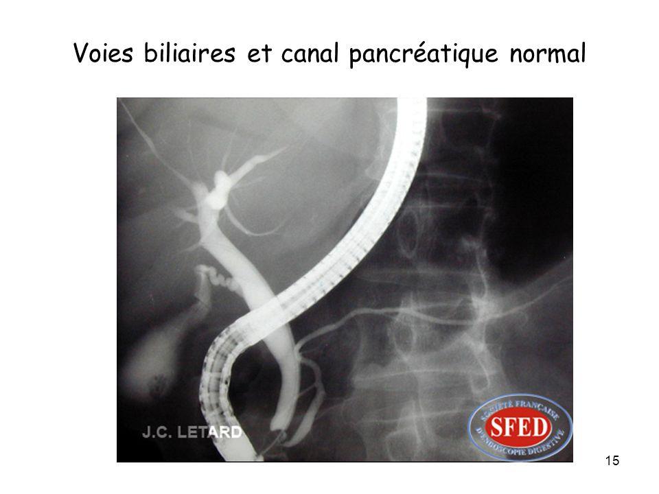 15 Voies biliaires et canal pancréatique normal