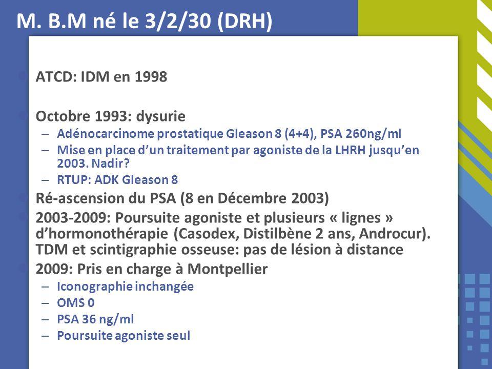 M. B.M né le 3/2/30 (DRH) ATCD: IDM en 1998 Octobre 1993: dysurie – Adénocarcinome prostatique Gleason 8 (4+4), PSA 260ng/ml – Mise en place dun trait