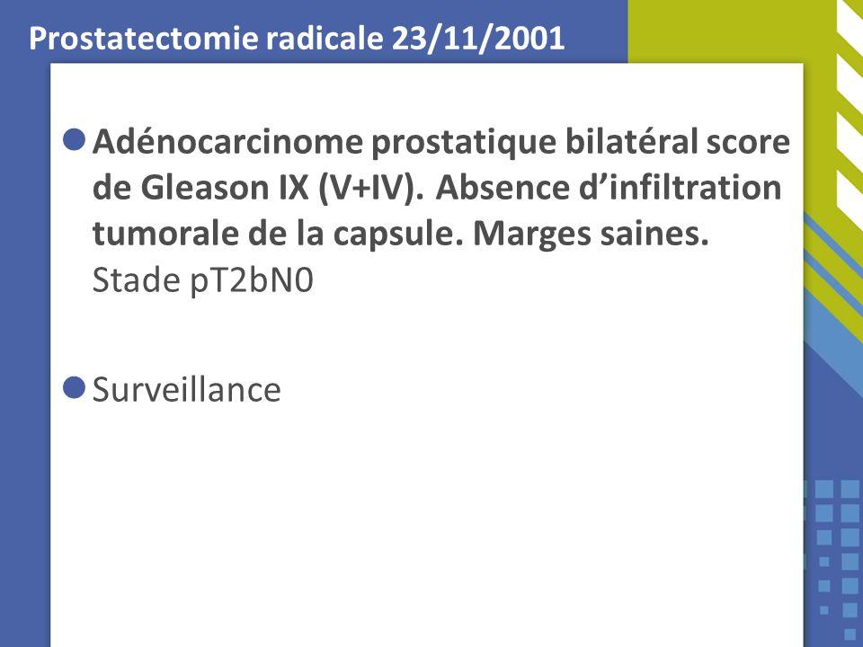 Prostatectomie radicale 23/11/2001 Adénocarcinome prostatique bilatéral score de Gleason IX (V+IV). Absence dinfiltration tumorale de la capsule. Marg