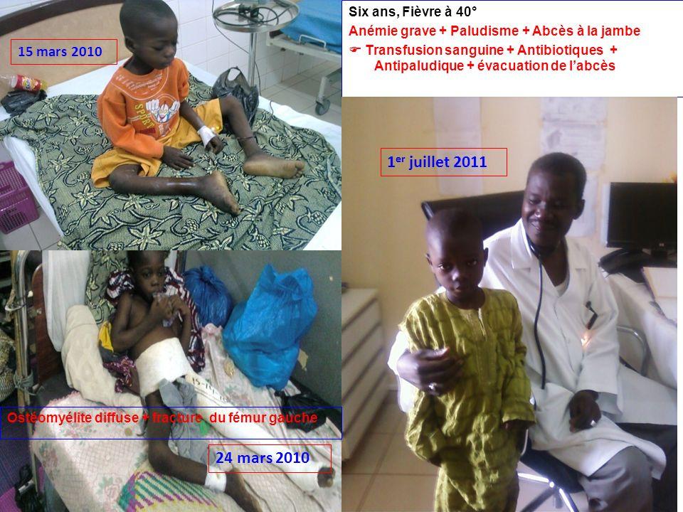 Six ans, Fièvre à 40° Anémie grave + Paludisme + Abcès à la jambe Transfusion sanguine + Antibiotiques + Antipaludique + évacuation de labcès 15 mars