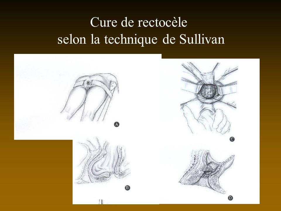 Cure de rectocèle selon la technique de Sullivan