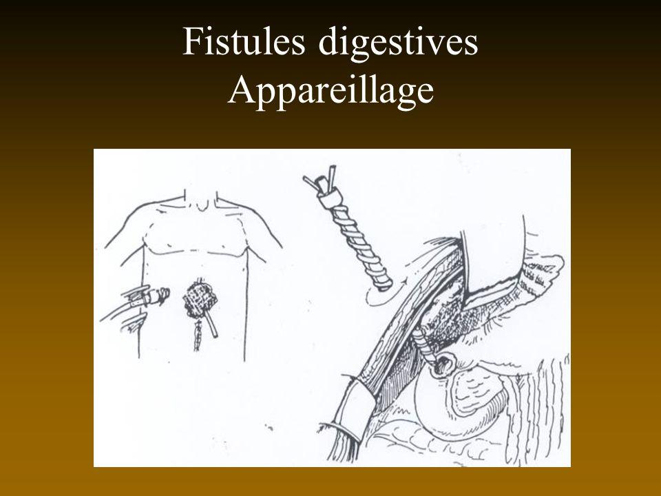 Fistules digestives Appareillage