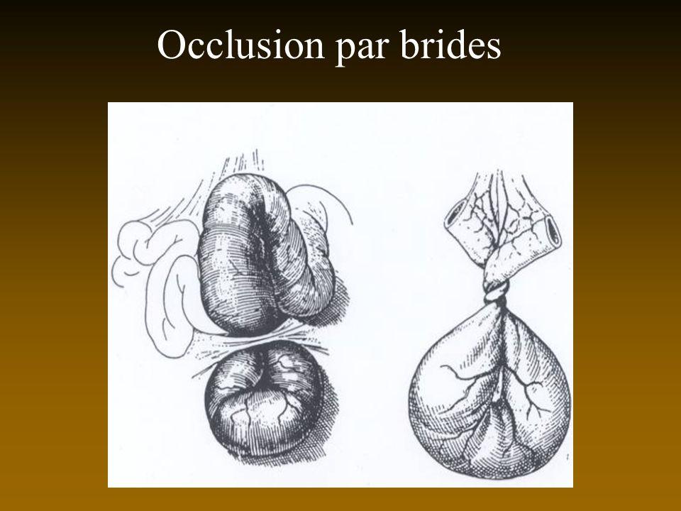 Occlusion par brides