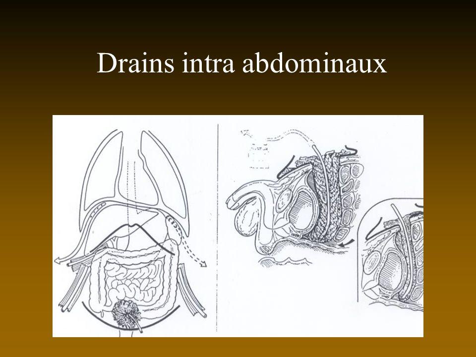 Drains intra abdominaux