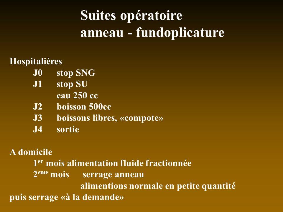 Suites opératoire anneau - fundoplicature Hospitalières J0 stop SNG J1stop SU eau 250 cc J2boisson 500cc J3boissons libres, «compote» J4sortie A domic