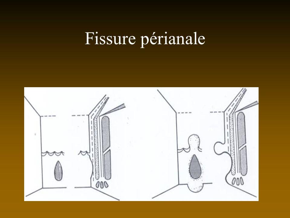Fissure périanale