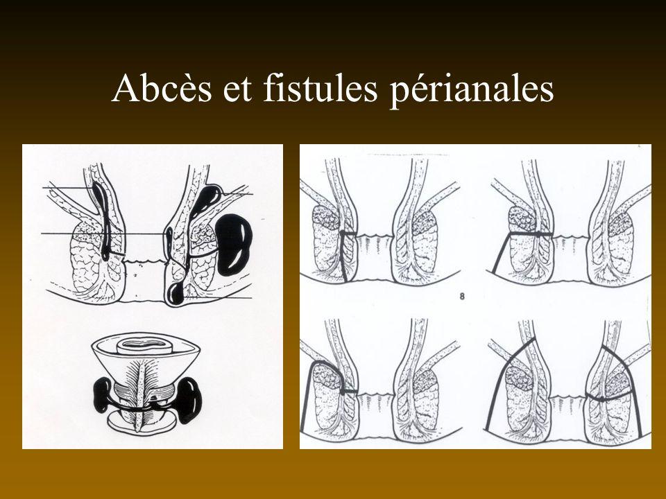 Abcès et fistules périanales