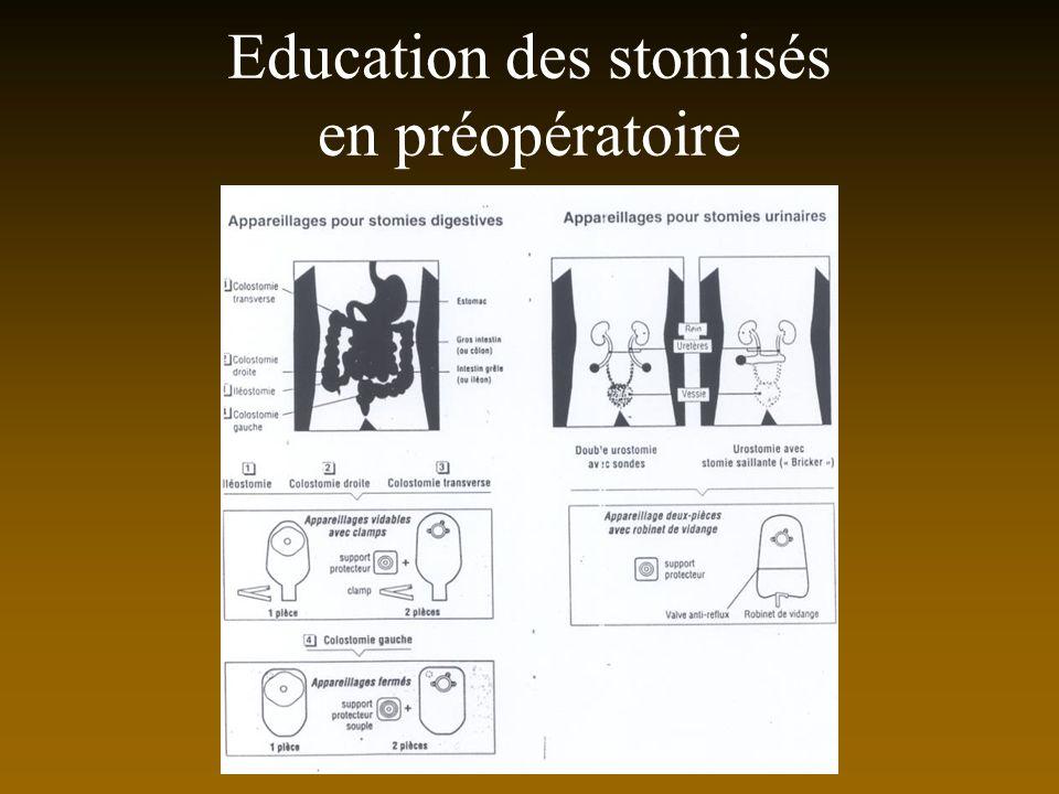 Education des stomisés en préopératoire
