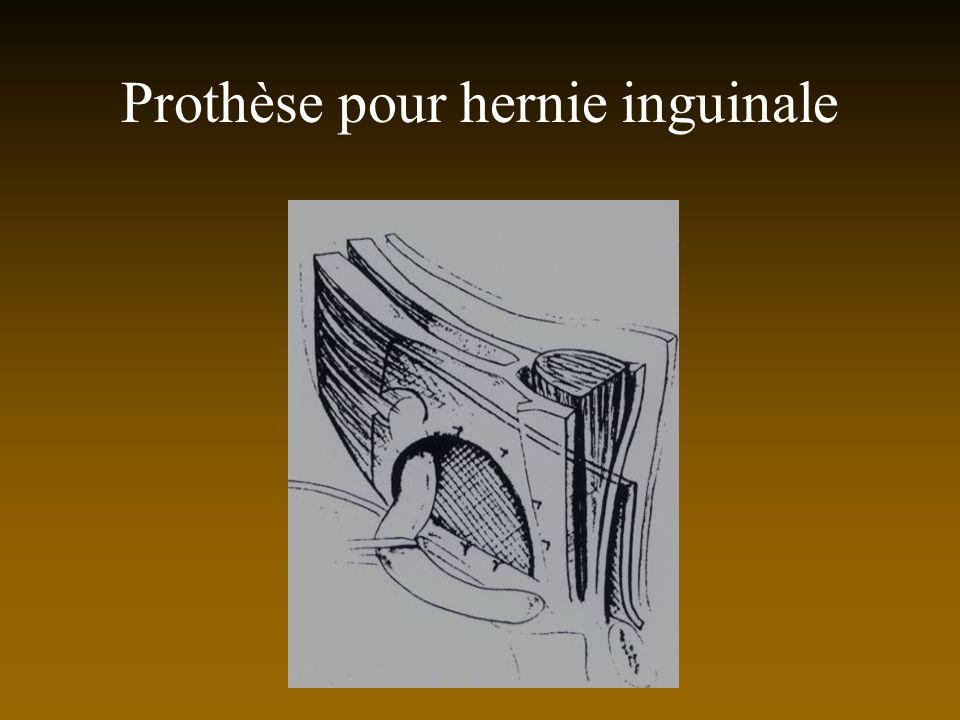 Prothèse pour hernie inguinale