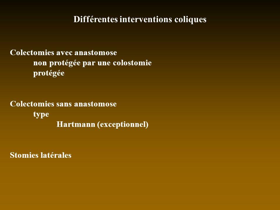 Différentes interventions coliques Colectomies avec anastomose non protégée par une colostomie protégée Colectomies sans anastomose type Hartmann (exc