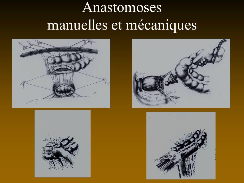 Anastomoses manuelles et mécaniques