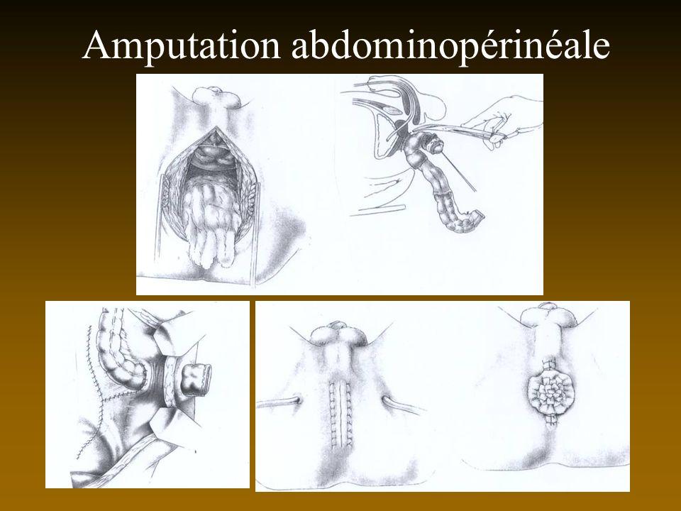 Amputation abdominopérinéale