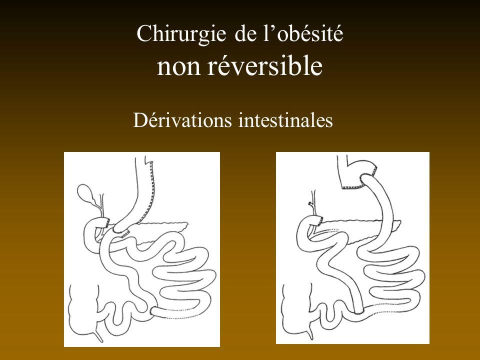 Chirurgie de lobésité non réversible Dérivations intestinales