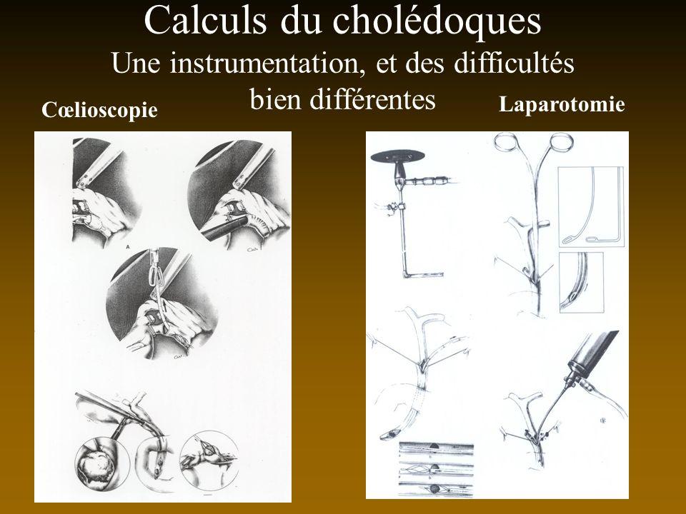Calculs du cholédoques Une instrumentation, et des difficultés bien différentes Cœlioscopie Laparotomie