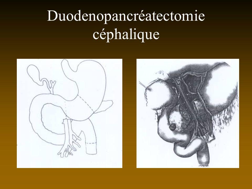 Duodenopancréatectomie céphalique