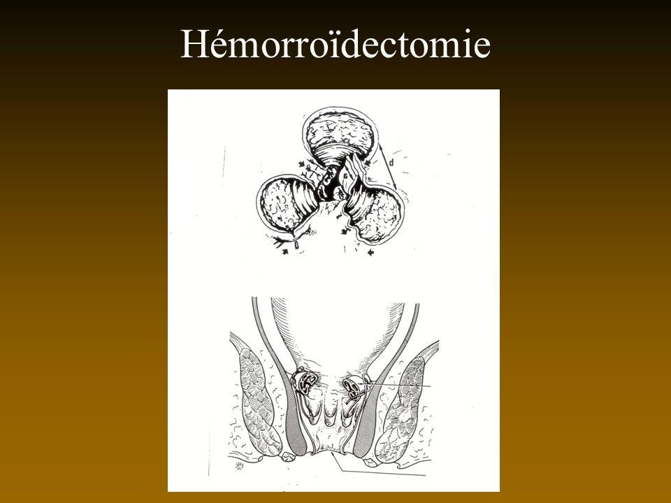 Hémorroïdectomie