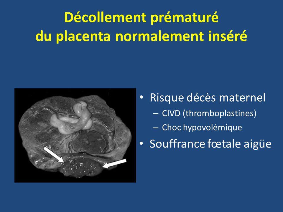 Décollement prématuré du placenta normalement inséré Risque décès maternel – CIVD (thromboplastines) – Choc hypovolémique Souffrance fœtale aigüe