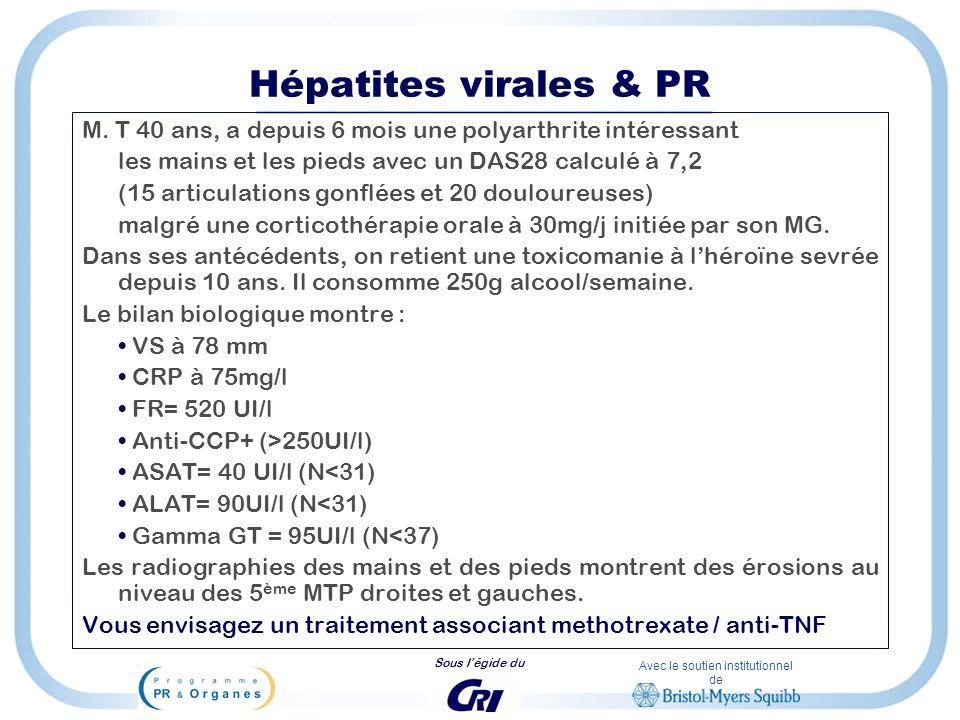 Avec le soutien institutionnel de Sous légide du Hépatites virales & PR M. T 40 ans, a depuis 6 mois une polyarthrite intéressant les mains et les pie