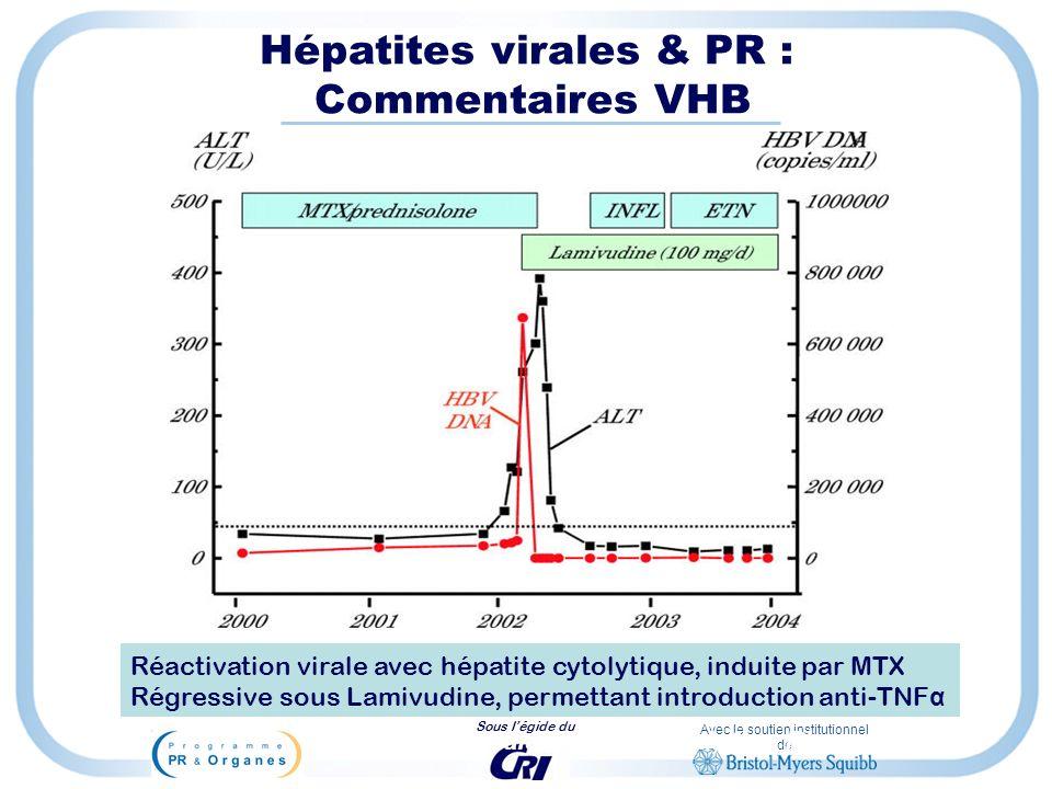 Avec le soutien institutionnel de Sous légide du Calabrese LH et al, Ann Rheum Dis 2004 Hépatites virales & PR : Commentaires VHB Réactivation virale