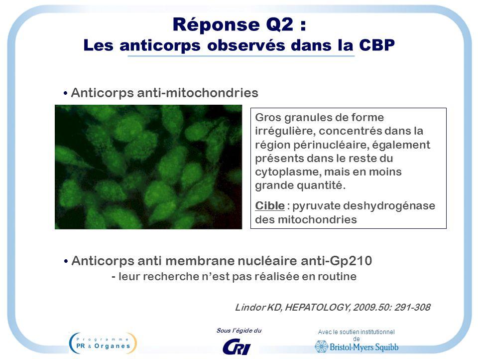 Avec le soutien institutionnel de Sous légide du Réponse Q2 : Les anticorps observés dans la CBP Anticorps anti-mitochondries Gros granules de forme i